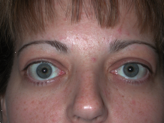 Bilateral Proptosis (Bulging Eyes) and Bilateral Retraction