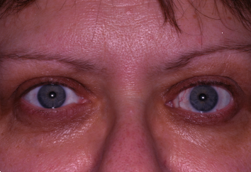 After Left Eye Orbital Decompression and Left Eyelid Retraction Repair