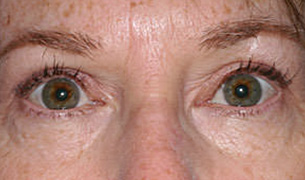 Eyelid and Forehead Lifting after