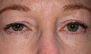 Eyelid and Forehead Lifting before