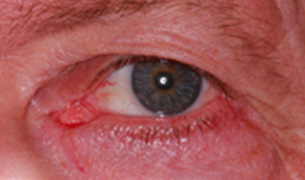Eyelid and Orbital Injury after